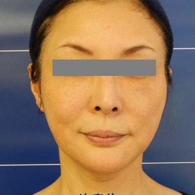 HIFU(ハイフ)3種類を全顔に照射すると、お顔が小さくなっちゃった!の記事に添付されている画像