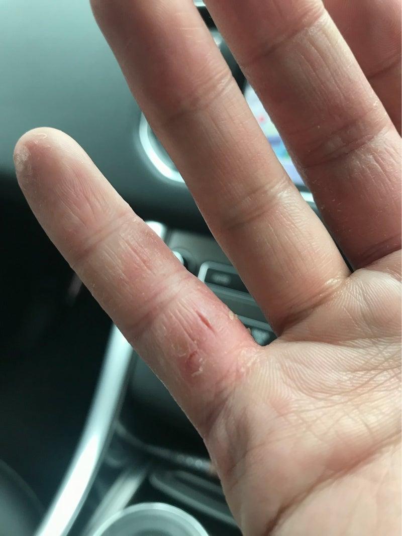 割れ 方 治し ぱっくり 指