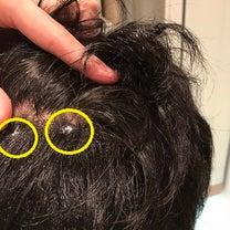 術後22日目! 自毛植毛最大の難点はやはりヘアシートだったことが判明!の記事に添付されている画像