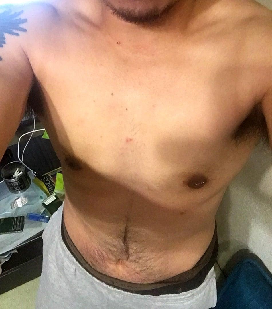 豊胸術から乳がん検診まで|バストの総合医療ナグ …
