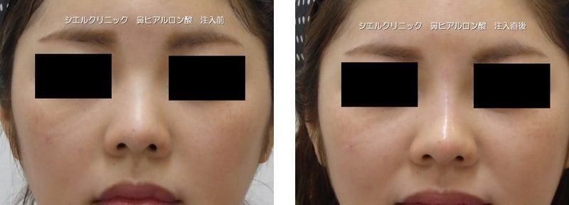鼻筋ヒアルロン酸 鼻先ヒアルロン酸