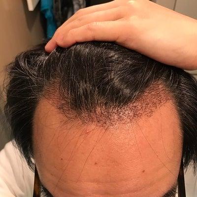 術後1か月! 大きな変化はないですが髪の毛が伸びてきました。の記事に添付されている画像