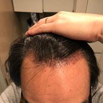 術後25日目! 移植毛の長さにバラつきが出てきました。の記事に添付されている画像