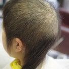 抜毛症だってお洒落は楽しめるんだよー35 重度の抜毛症 からの奮闘。の記事より