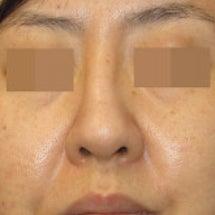 鼻中隔延長術:術後3…