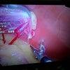 腹腔鏡手術(避妊手術)の画像