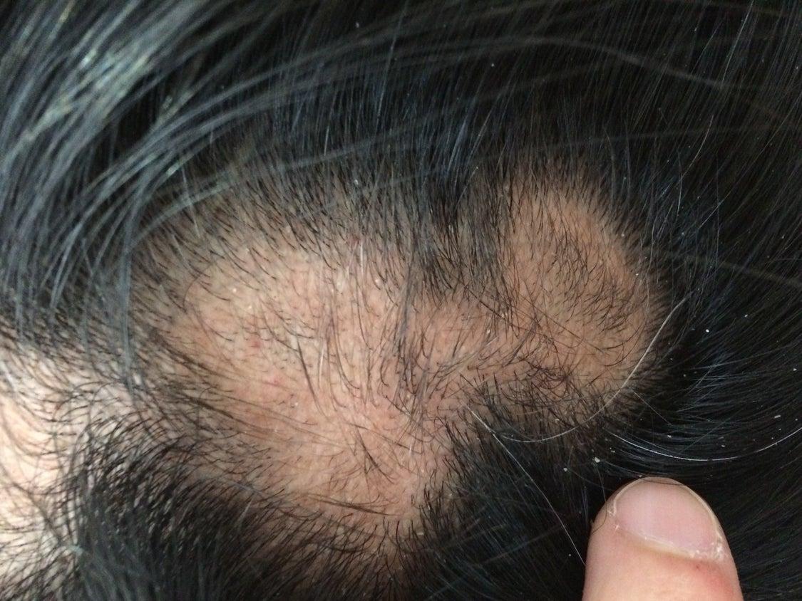 円形脱毛症にはりきゅう2の記事より