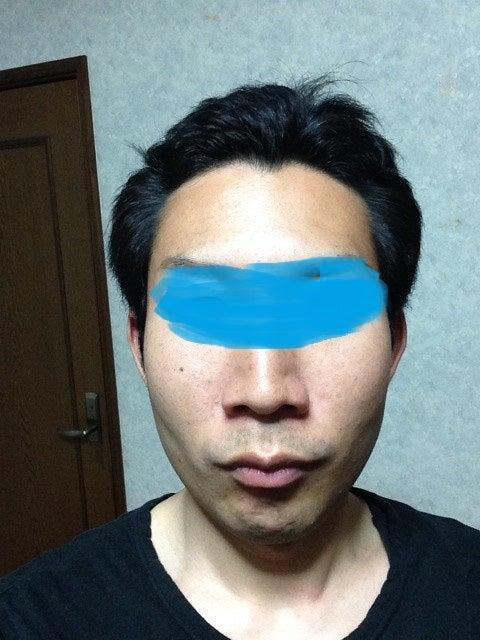 炎 完治 皮膚 漏 性 ブログ 脂