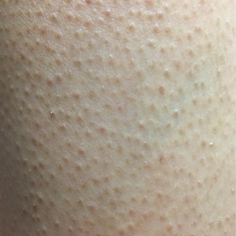 苔 癬 性 毛孔