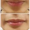 口唇ヒアルロン酸の画像