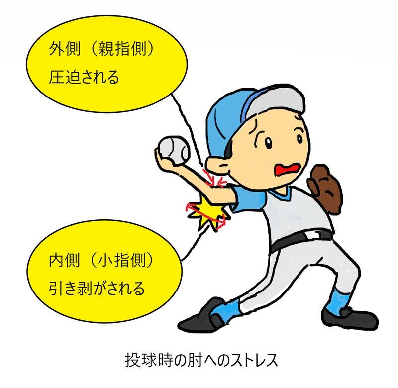 会津若松市 野球肘