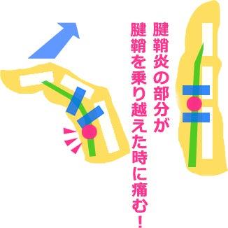会津若松市 ばね指