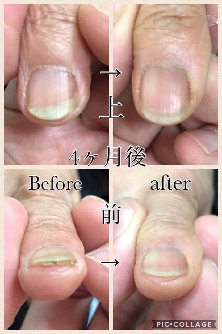爪 甲 層状 分裂 症