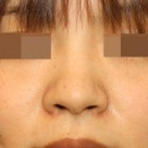 団子鼻 鼻尖形成術:…