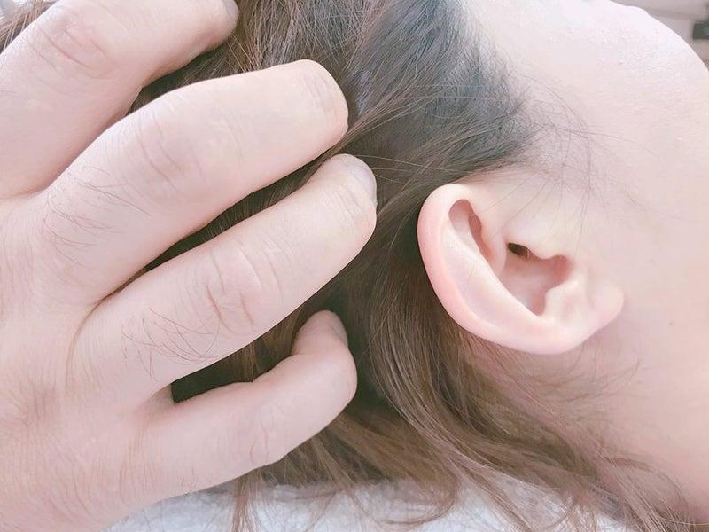 会津若松市 頭痛