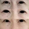 目の周りに ベビーコラーゲンの画像