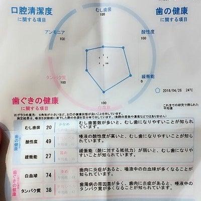☆★歯茎の白いできもの・・・怖いヽ(´Д';)ノの記事に添付されている画像