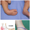 生まれつき足が曲がってても、セルフケアとアロマケアで施術すると1ヶ月半で。。。の画像