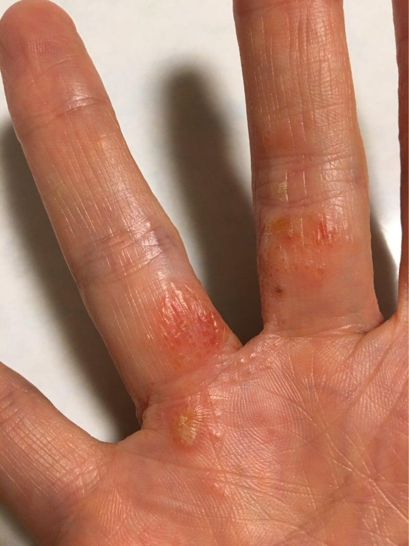 湿疹 水疱 手