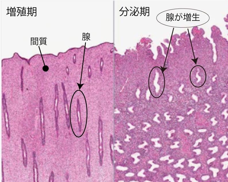 膜 症 増殖 ブログ 子宮 内