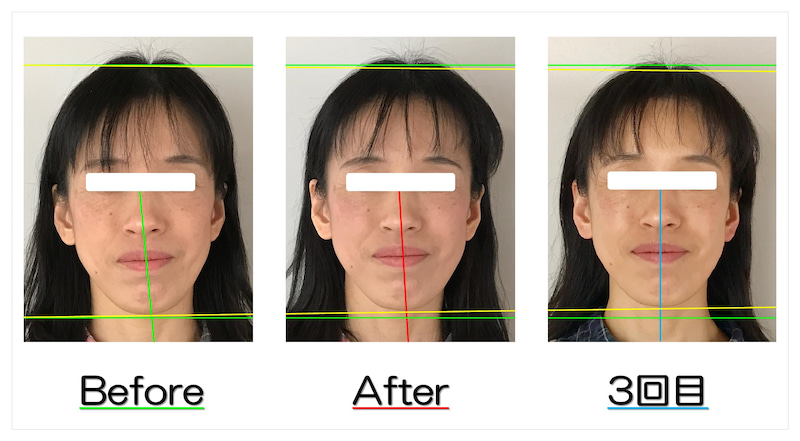 BeforeAfter写真 顔の歪み解消