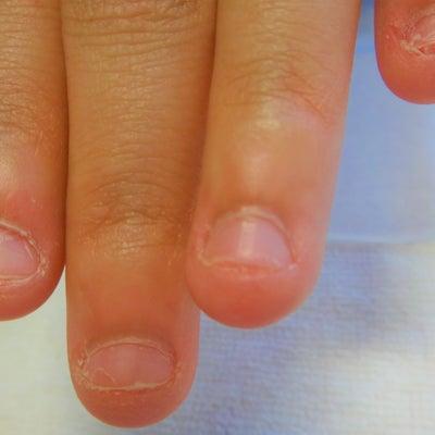 深爪矯正 25日経過爪のピンクの部分はどのくらい伸びたか?の記事に添付されている画像