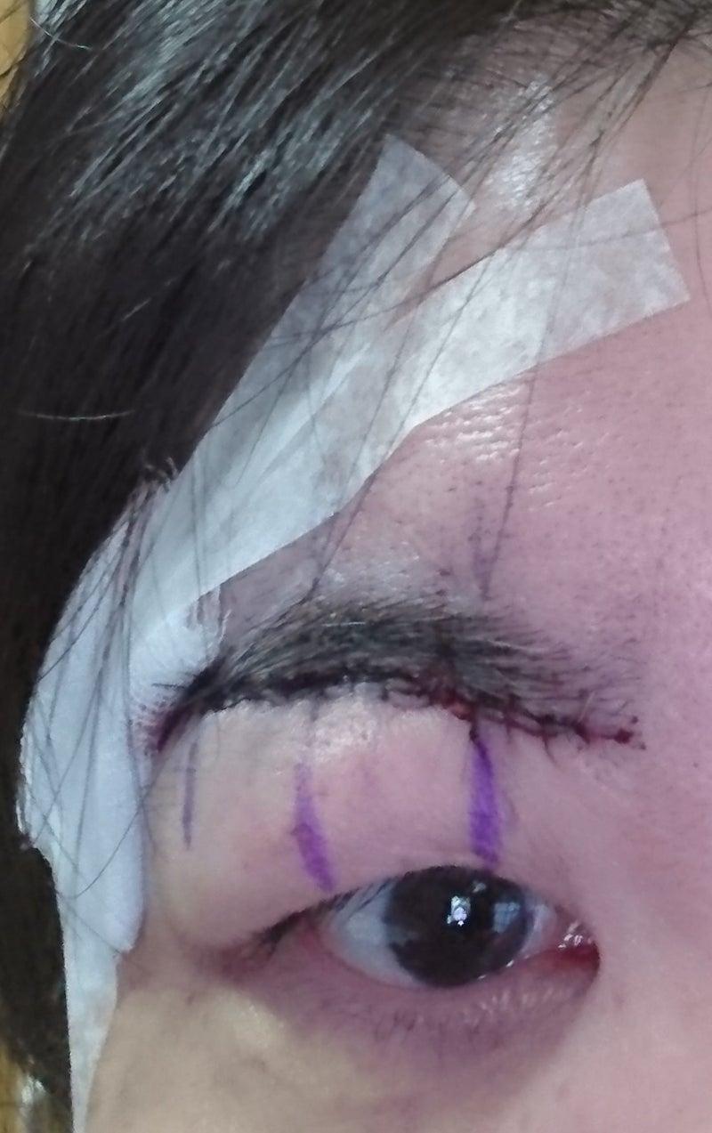 瞼が腫れる原因