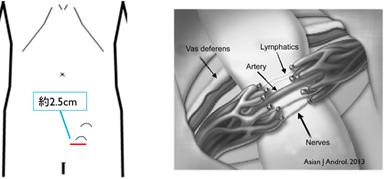 索 瘤 精 静脈