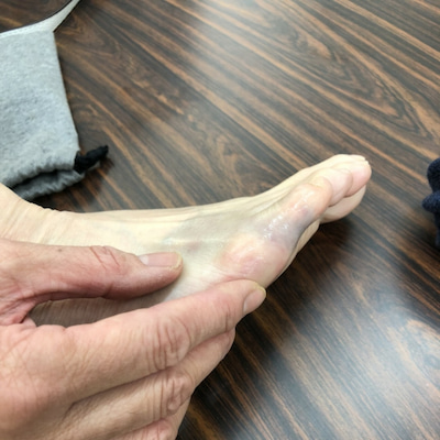 足の小指!やっちまったの記事に添付されている画像