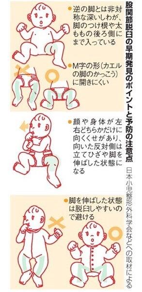 赤ちゃん 肩 脱臼