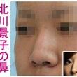 鼻のイメージを変えた…