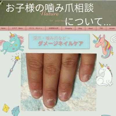 子供の噛み爪について、、、の記事に添付されている画像