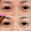 目の下にはヒアルロン酸?ベビーコラーゲン?の画像