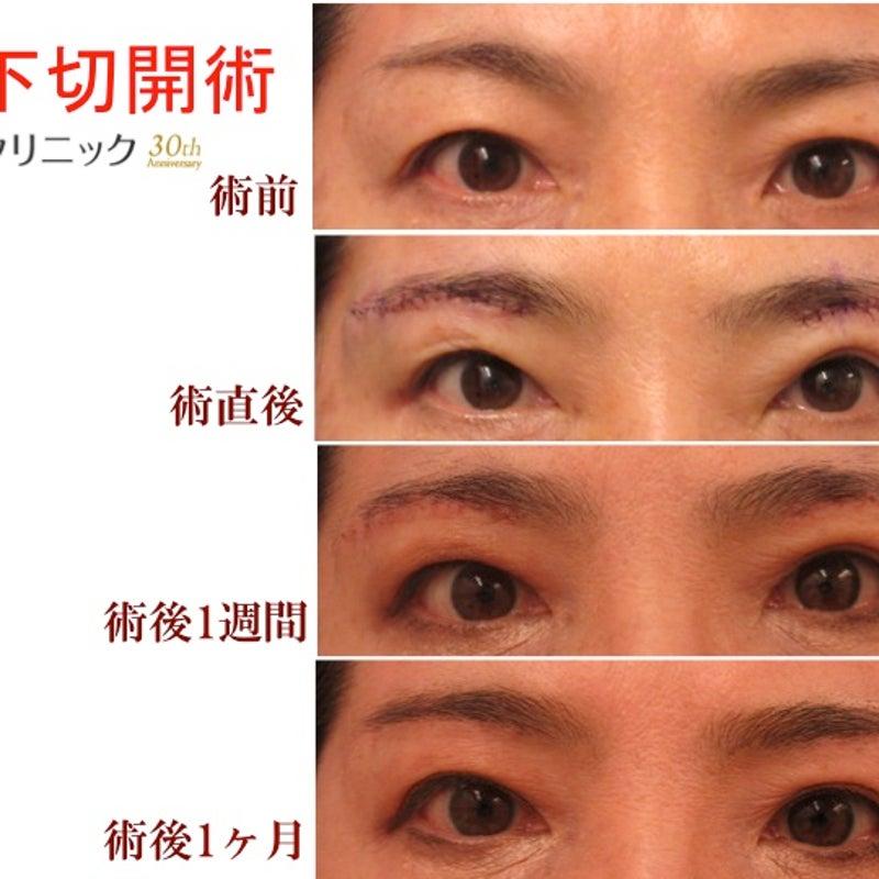 下 っ プラスト 眉 切開 く に くり 眉下切開の後療法で行ってはいけないこと