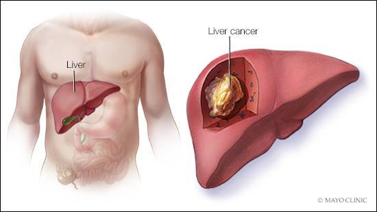 肝臓癌 liver cancer 南斗鳳凰拳 月に100の英単語を覚える