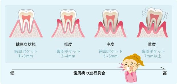 歯周病のサイン