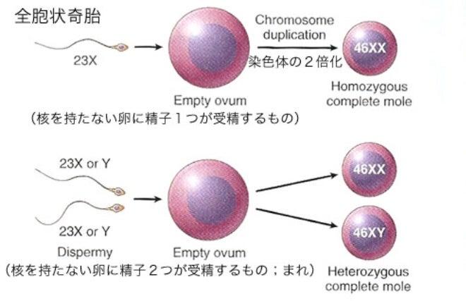 胎 全 胞状 奇 胞状 奇