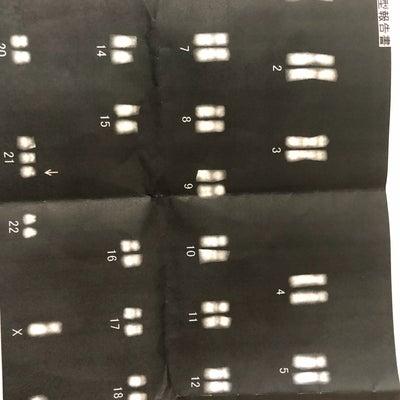 ダウン症の診断の記事に添付されている画像