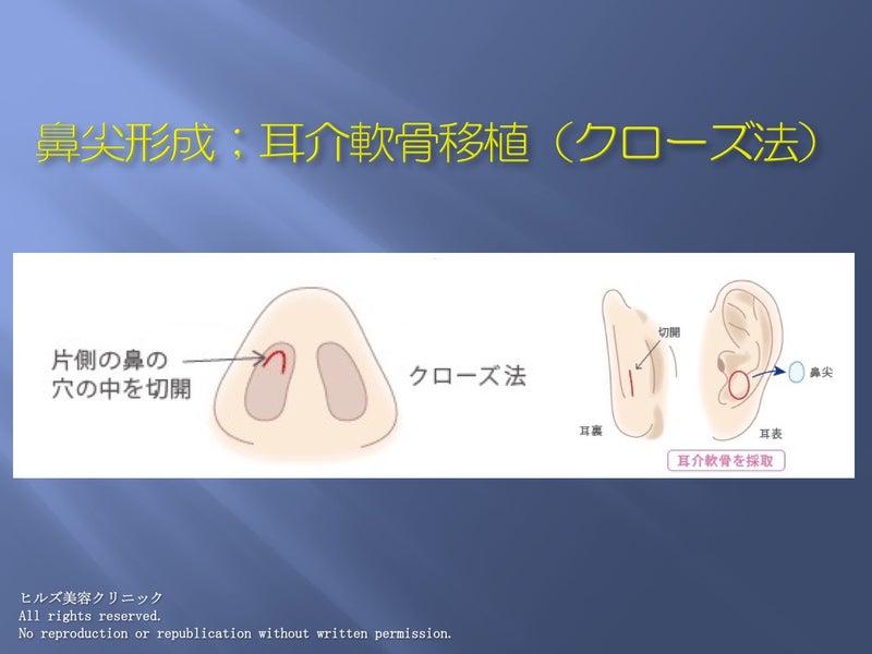 耳介軟骨採取