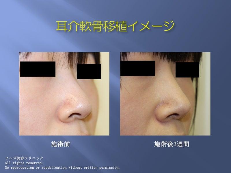 鼻尖部耳介軟骨移植写真