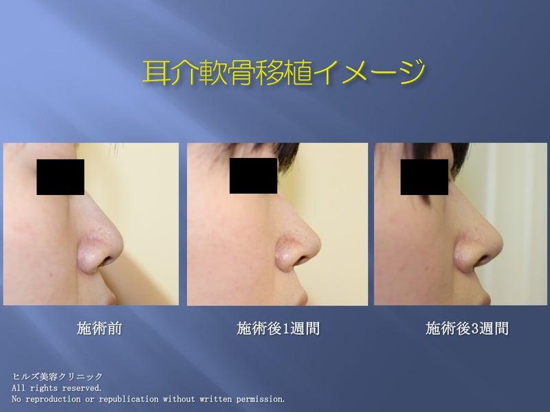 鼻尖形成(耳介軟骨移植)写真