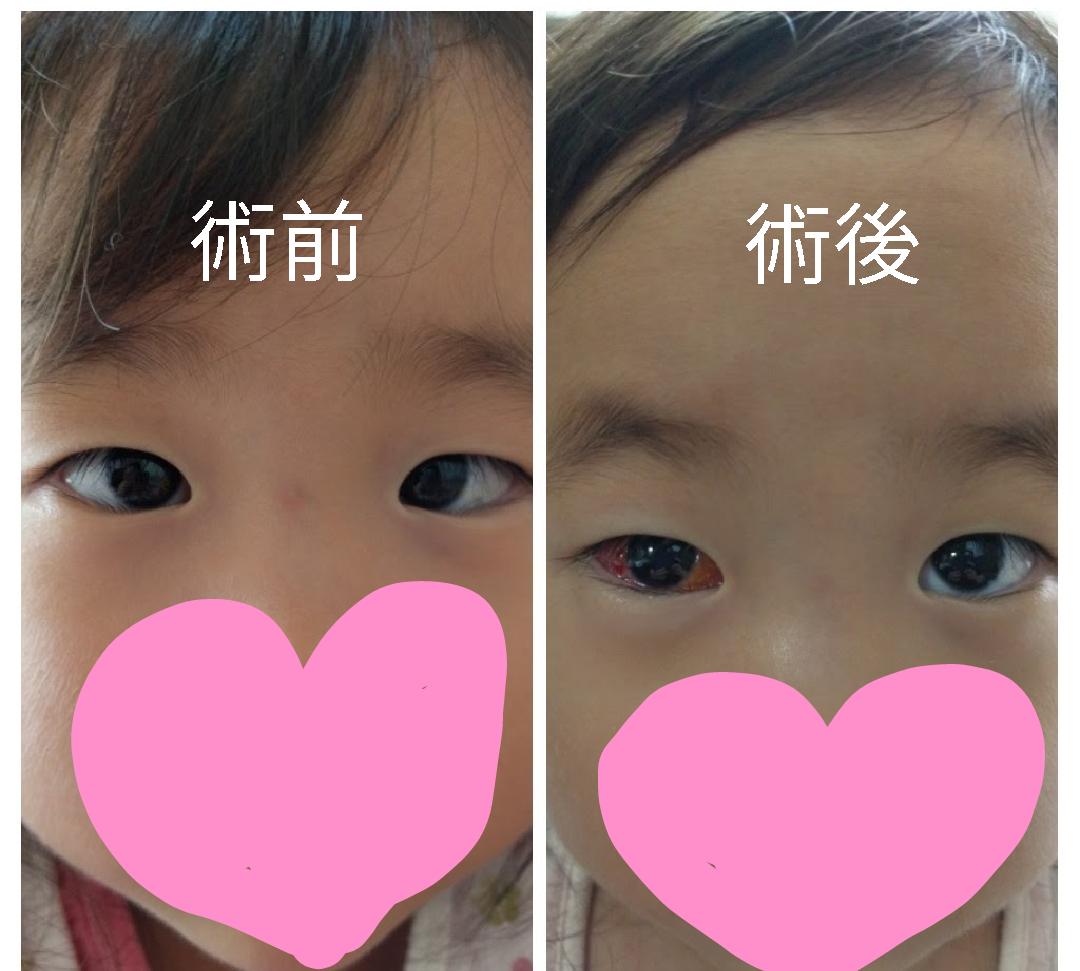 赤ちゃん 内 斜視