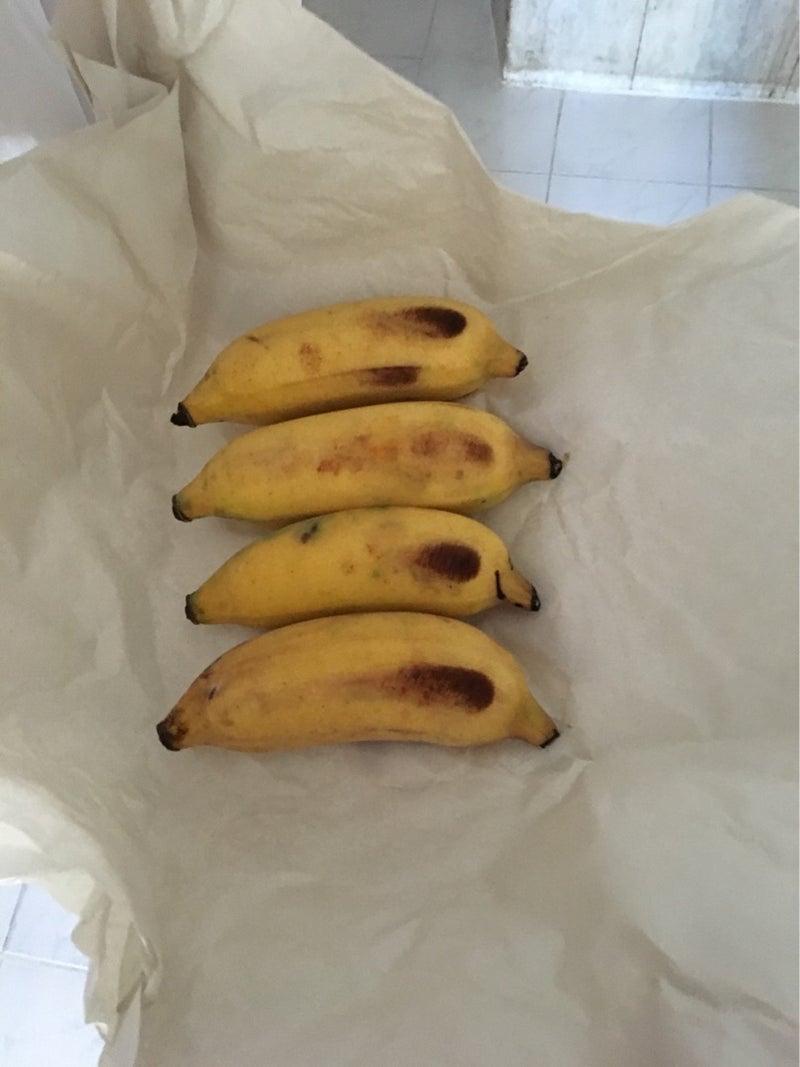 管 バナナ 尿 結石