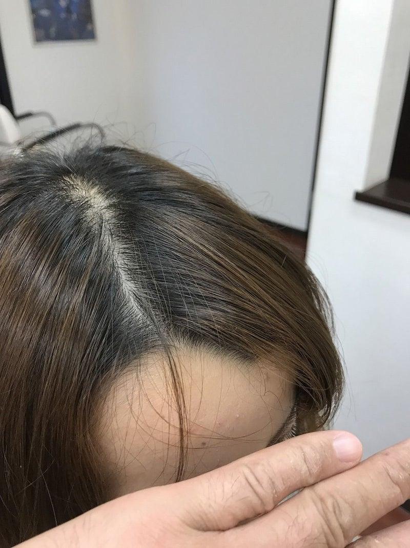 ぱっかり分れる前髪を矯正 | 埼玉県本庄市 美容室ヘアーリゾート ...