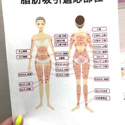渋谷美容外科クリニック shibucli 脂肪吸引の記事に添付されている画像
