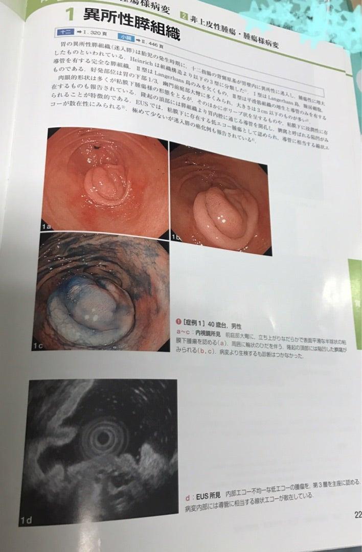 胃カメラ精密検査終わりました☆ ...