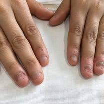 深爪、爪噛み癖、爪剥ぎ、爪むしり癖、自爪にコンプレックスのある方の為のネイルメニの記事に添付されている画像