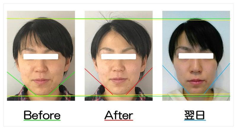小顔矯正 ビフォーアフター写真 頬とアゴのたるみ解消で、丸顔が細い小顔へ