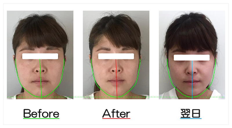頬のラインが引締まり、歪みも改善し立体的に