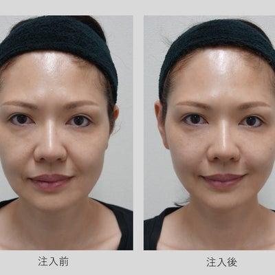 アラガン・ジャパン社のフィラー注入セミナー(モニター様症例)その4の記事に添付されている画像